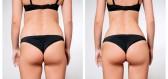 Jak funguje laserová liposukce?